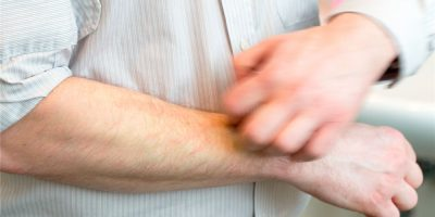 Кожный зуд один из первых признаков диабета
